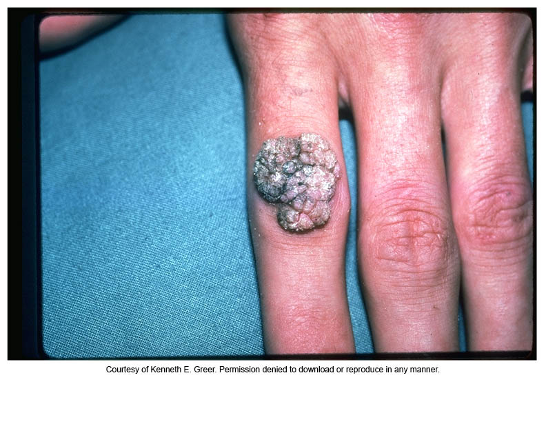 common wart on hand. vulgaris (common wart)